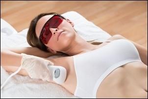 Laser hårreduktion